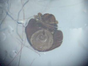 掃除機で採取した虫体死骸頭部
